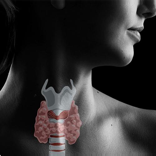Hipotireoidismo: Epidemia que pode ser evitada