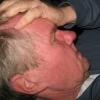 Acidente Vascular Cerebral (AVC): Conhecer para prevenir