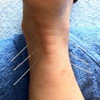 Os benefícios da acupuntura ortopédica
